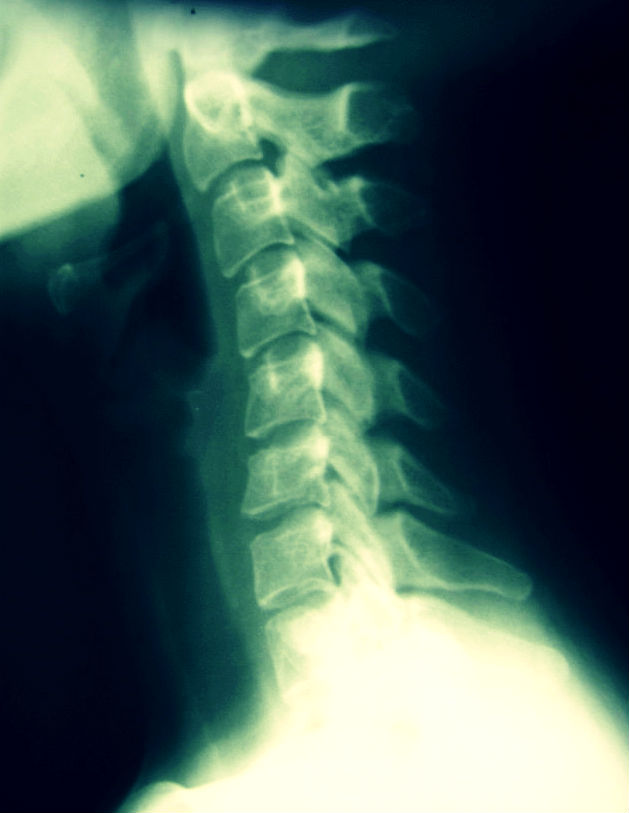 chiropractic care for work injuries
